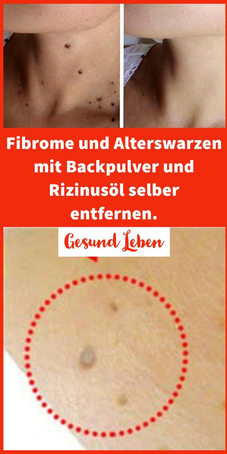 Fibrome und Alterswarzen mit Backpulver und Rizinusöl selber entfernen.