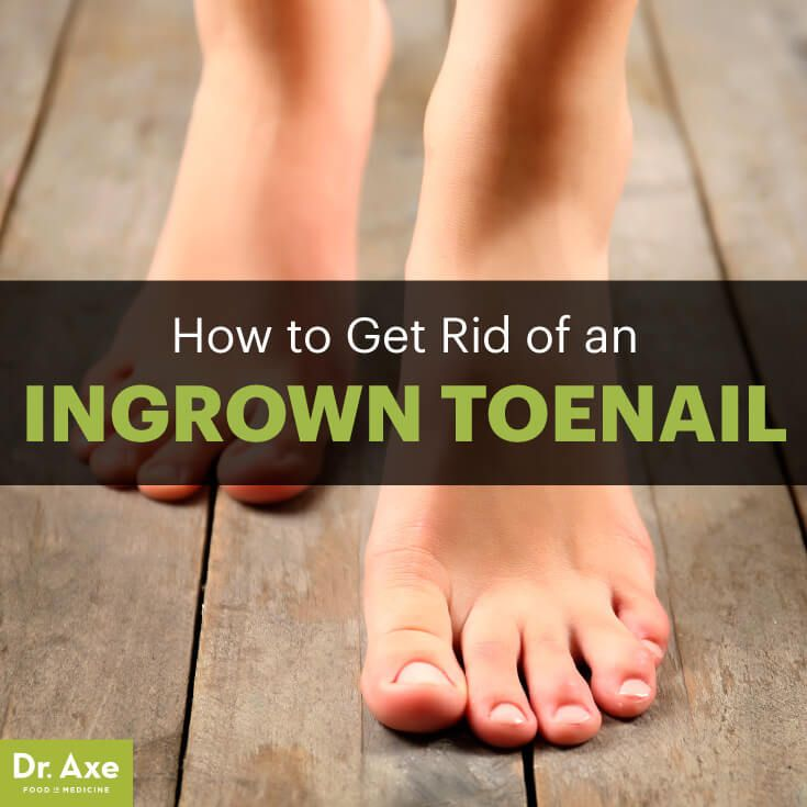 Ingrown toenail - Dr. Axe http://www.draxe.com #health #holistic #natural