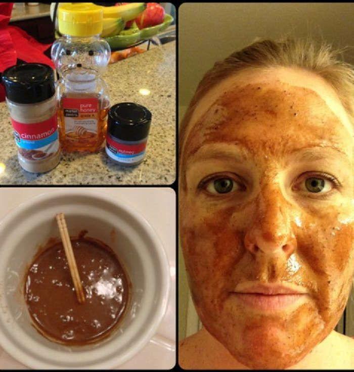 Acne e espinha são problemas de pele bastante comuns. O pior é que, dependendo do tratamento, podemos ficar com marcas escuras e cicatrizes para sempre. Es