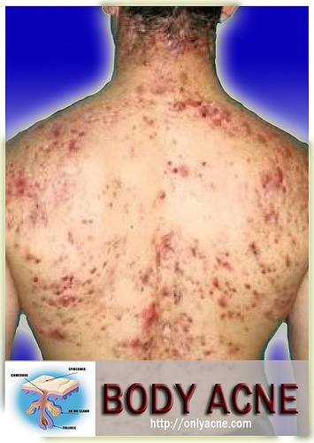 acne adult medicine best