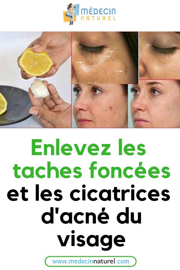 Enlevez les taches foncées et les cicatrices d'acné du visage