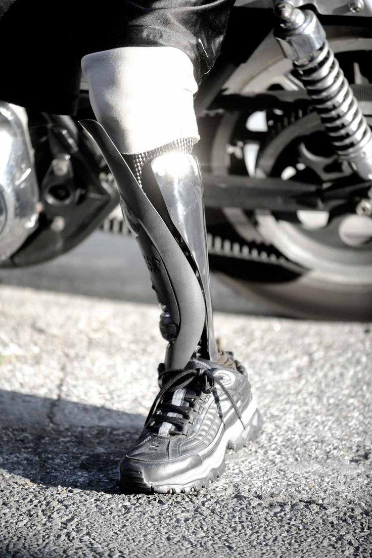 Prosthetic Limbs? Essay Help?