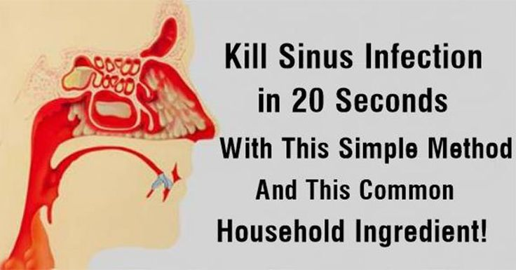 Gone in 60 seconds? No, make that 20. 20 seconds is all the time you need to perform a drainage of your nasal cavity and clear those clogged sinuses. It is one the easiest techniques that we know o…