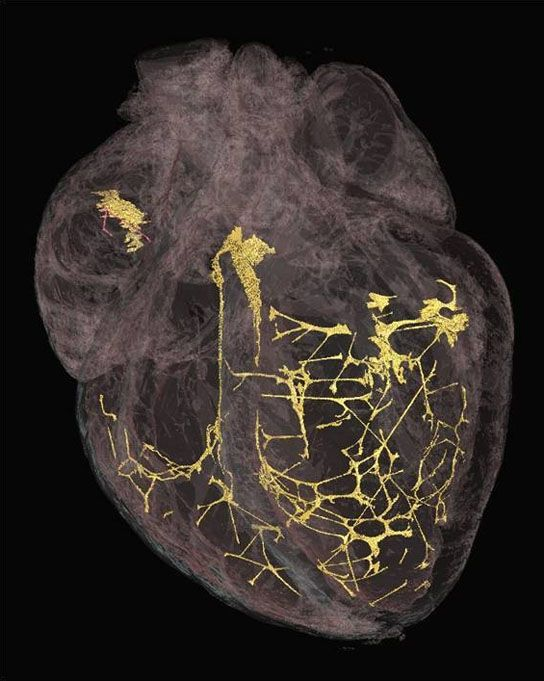 A 3-D image of the heart showing the fibers that control heart rhythm using a micro CT scanner