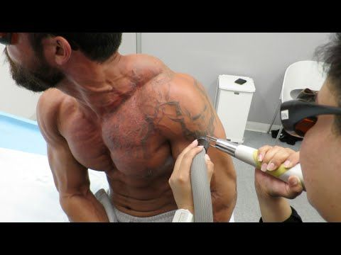 TATTOO REMOVAL - Day in the LIFE: Day 5