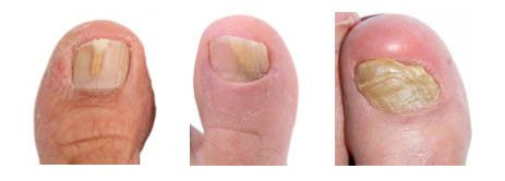 If you have toenail fungus, go to this page to learn some powerful ways to get rid of your infection from home. http://toenailfungussolutions.com