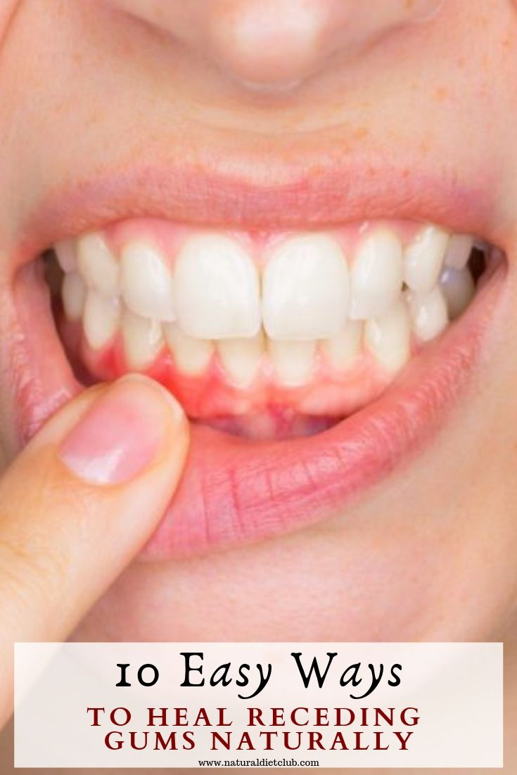 how to fix a loose tooth in front at home