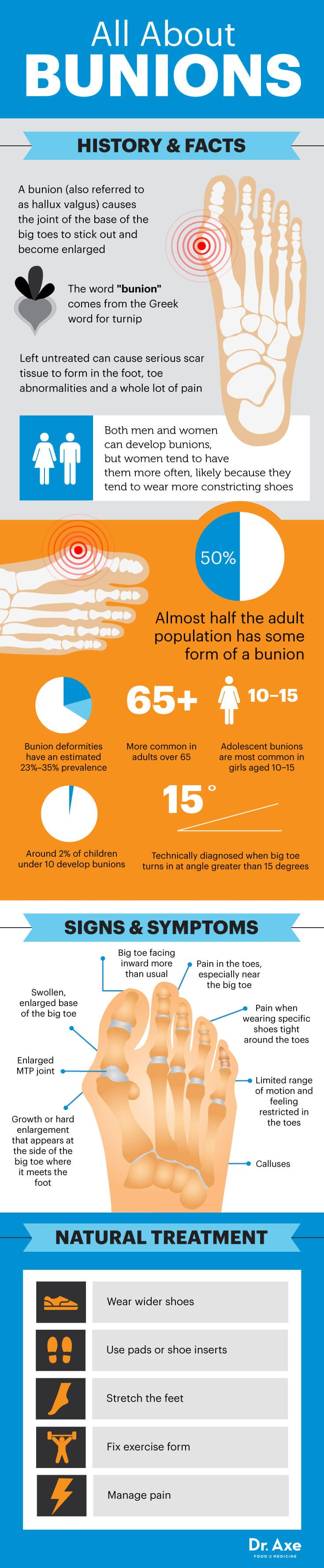 All about bunions - Dr. Axe