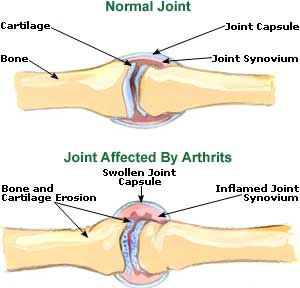 .....Arthritis Treatment, Symptoms, Pain