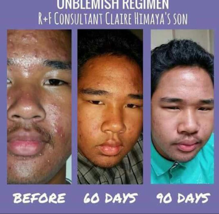 Results are amazing! I have the answer to all your skin care needs/ concerns. Women stop hiding behind make-up and men stop hiding behind those hats, Rodan and fields will change your life!!! #askmehow  #changingskin