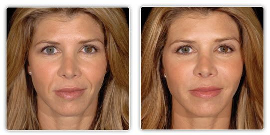 Well! apologise, Facial before and after photos
