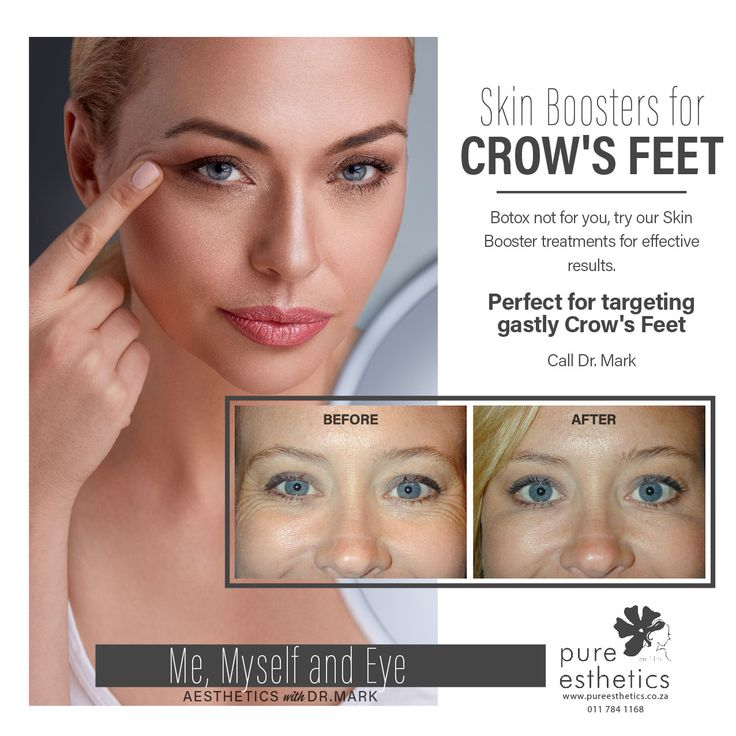 Skin Boosters for Crow's Feet Botox not for you, try our Skin Booster treatments for effective results. Perfect for targeting ghastly Crow's FeetCall Dr. Mark