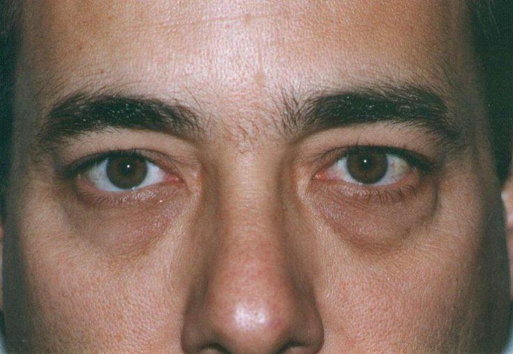 Remedios Caseros Para Las Ojeras Oscuras Bajo Los Ojos Top 10 Remedios Caseros http://top10remedioscaseros.com/remedios-caseros-para-las-ojeras-oscuras/