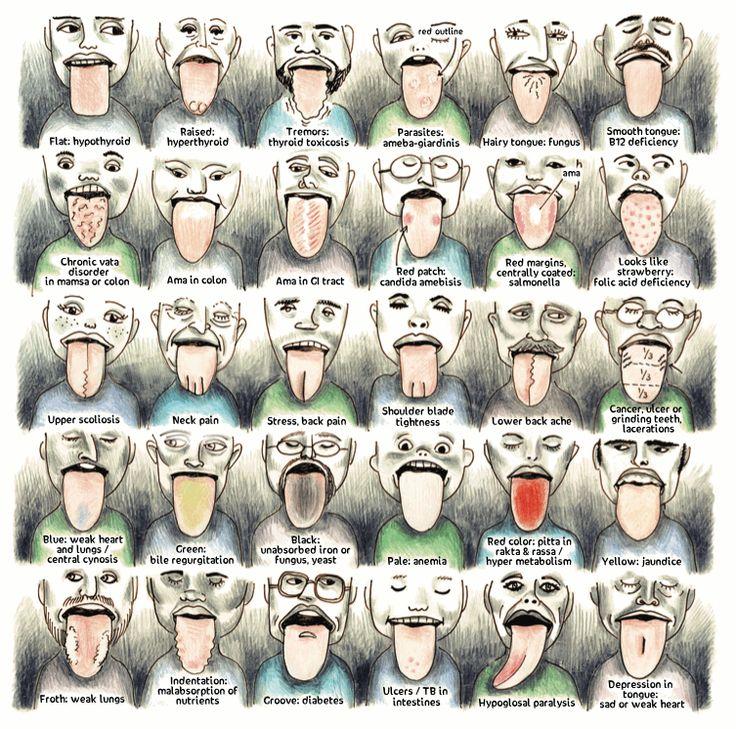 Ayurvedic Tongue Diagnosis Made Easy | Wake Up World