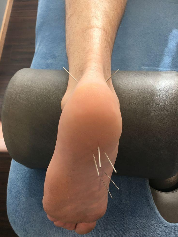 Dry Needling goede therapie bij hardloopblessures. http://www.medi-sportlagune.nl/therapie/dry-needling   #hardlopen #blessure #pijn #hielspoor #fascitis #plantaris #fysiotherapie #Heerhugowaard