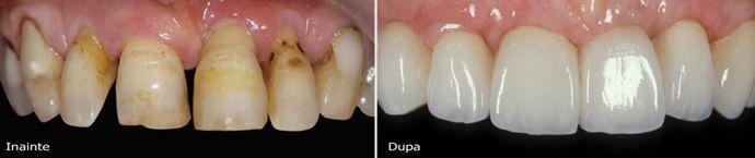 Où puis-je trouver des facettes dentaires en Roumanie et qui est leur coût? Nous vous invitons à voir notre prix  ici et contactez-nous immédiatement! http://www.intermedline.com/dental-clinics-romania/ #tourismedentaire #tourismedentaireenRoumanie #voyagedentaire #voyagedentaireenRoumanie #cliniquedentaire #cliniquedentaireenRoumanie #dentistes #dentistesenRoumanie #soinsdentaires #soinsdentairesenRoumanie #facettesdentaires  #facettesdentairesenRoumanie