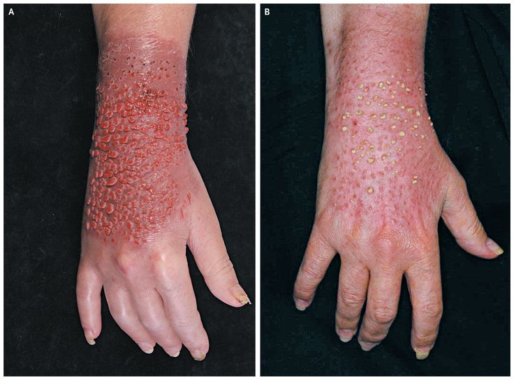 rash on the hands #11