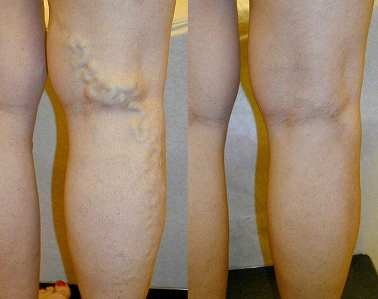 Die Merkmale der Thrombophlebitis der unteren Gliedmaßen des Fotos