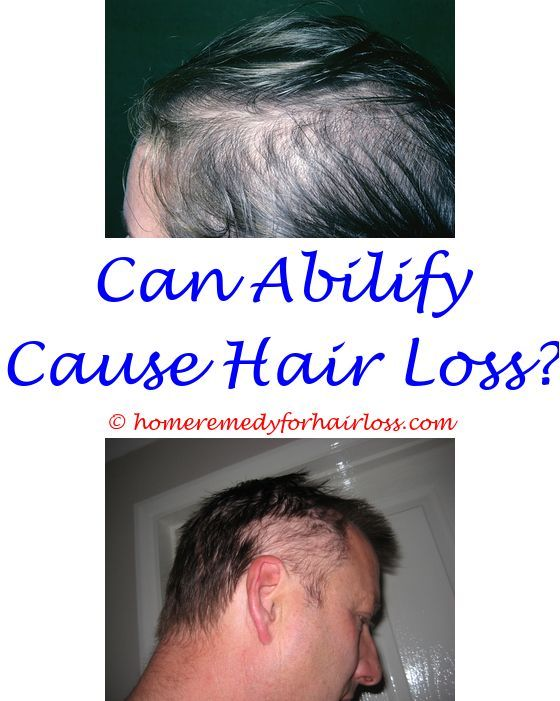 can too much hair dye cause hair loss - hair loss in cattle too much