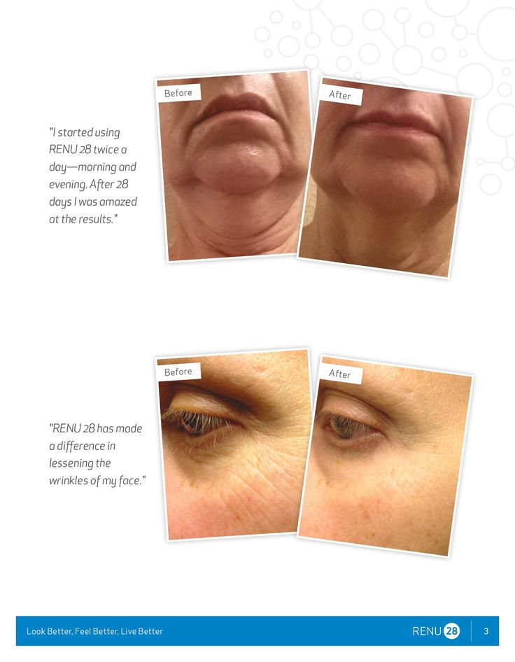 wrinkles, age spots, crow's feet, skin care, acne, younger looking skin