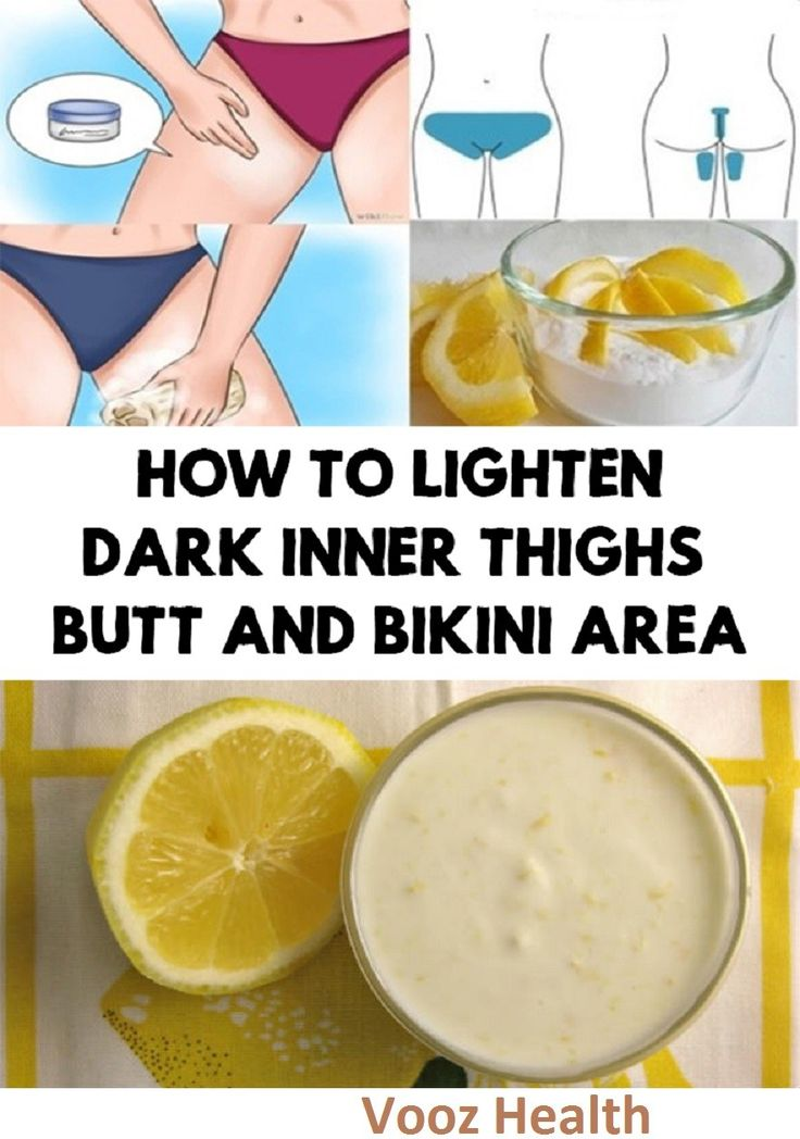 How to Lighten Dark Inner Thighs, Butt and Bikini Area