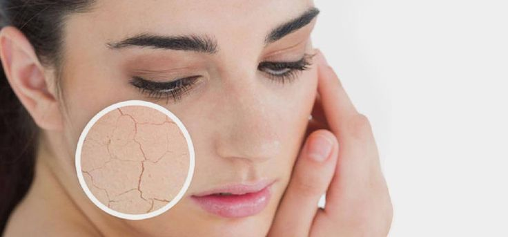 Dry Skin Care Tips for Everyone - Bharat Views