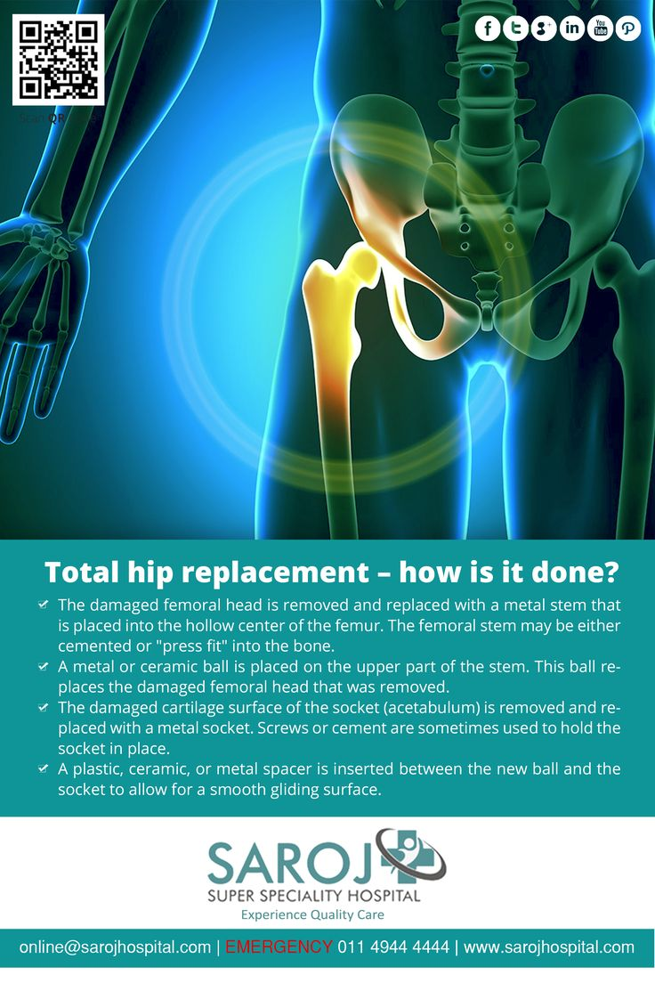 Wondering how a high end procedure like hip replacement is done? Read on to know about the common technique of performing a hip replacement surgery. http://bit.ly/293Ztfg ‪#‎HipReplacement‬ ‪#‎Surgery‬ ‪#‎SarojHospital‬ ‪#‎Delhi‬