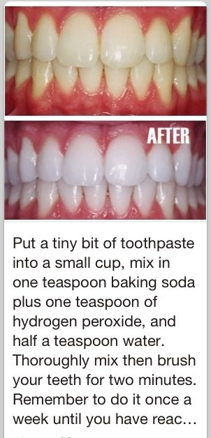 Hydrogen Using Hydrogen Peroxide To Whiten Teeth