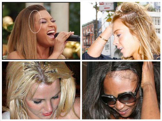 a) Beyonce's lace front glue b) Lindsay Lohan's extensions c) Britney's unblended tracks d) Naomi Campbell's edges