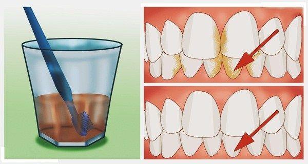 Správná ústní hygiena je mnohem důležitější, než se na první pohled může zdát. Ovlivňuje totiž váš celkový zdravotní stav a kvalitu vašeho chrupu. Užívat ústní vodu je dnes naprostou nezbytností, protože pomáhá v prevenci proti nejrůznějším onemocněním dutiny ústní. Na čistá ústa nestačí jen zubní kartáček Vyčistit si zuby kartáčkem nestačí. Pro kompletní ústní hygienu …