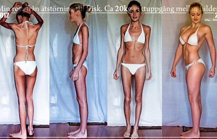 anorexic websites on how to become