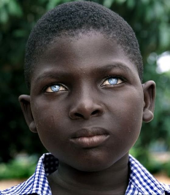 "All blue-eyed people can be traced back to one ancestor who lived 10,000 years ago near the Black Sea.  What many people DO NOT KNOW is that Europe was colonised by AFRICANS about 10K + years ago.  Therefore, the chance of any African child being born with blue eyes has been spread throughout the continent since then as a recessive gene. ""...the more you know."""