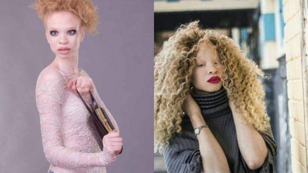 Gadis Albino ini dulu digelar hantu kini dah jadi model antarabangsa. Cantiknya   Albino (dari bahasa Latin albus yang berarti putih) disebut juga hypomelanism atau hypomelanosis adalah salah satu bentuk dari hypopigmentary congenital disorder. Ciri khasnya adalah hilangnya pigmen melanin pada mata kulit dan rambut. Ciri-ciri seorang albino adalah mempunyai kulit dan rambut secara abnormal putih susu atau putih pucat dan memiliki iris merah muda atau biru dengan pupil merah.    Gadis Albino…