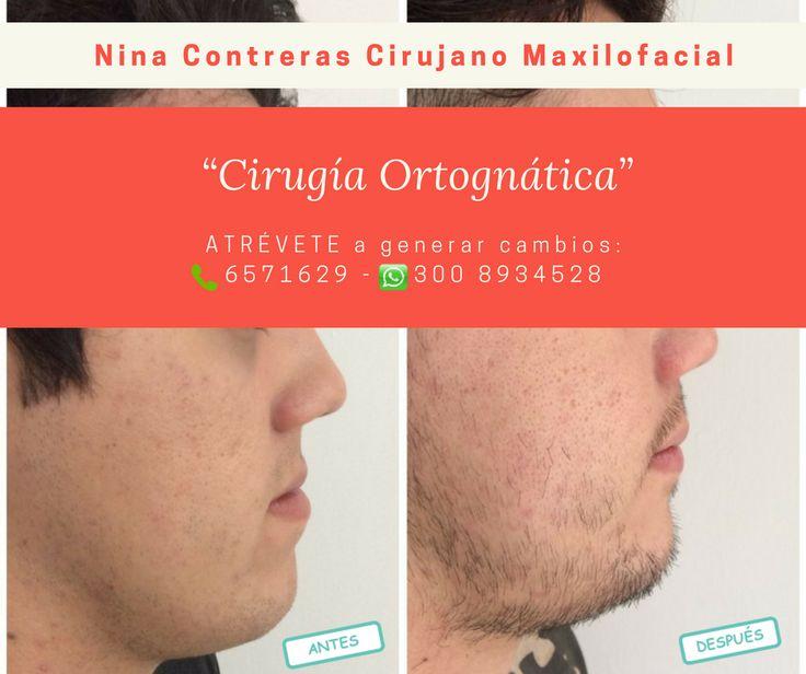 Especialistas en #cirugía #ortognática  Agenda tu #cita ya:  ☎️ 6571629 📲 300 8934528 #diseñodesonrisa #implantesdentales #prótesisdentales #ortodoncia  http://ninacontrerascmf.com/
