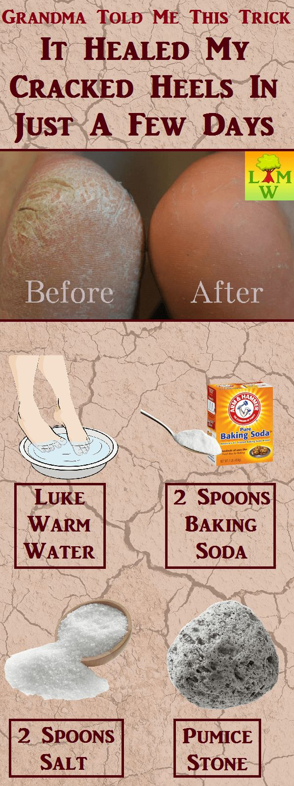 Heal Severely Cracked Heels with Baking Soda