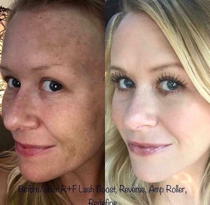 Transformation Tuesday Time!!!! This is what Reverse + AMP MD Roller + Lash Boost looks like.    #byebyedarkspots #hellolashes