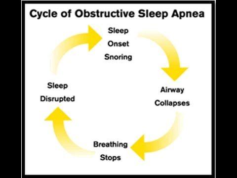 Sleep Apnea Exercises - Stop Sleep Apnea #StopSleepApnea