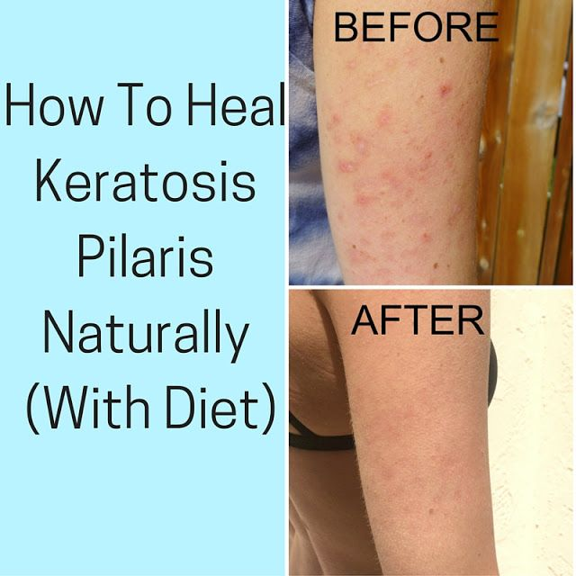 """Chances are if you made it here you have tried other things to try and heal your keratosis pilaris (KP) and are just not having success. Well I'm glad you stopped by. Since I shared """"How I Healed My Keratosis Pilaris (KP) Naturally"""" a few months ago, it has quickly become the most popular"""