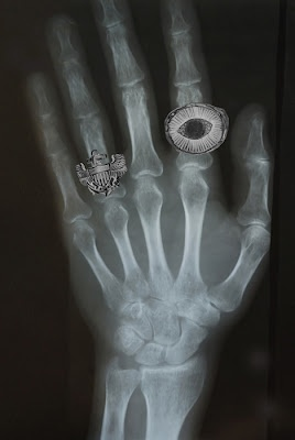 Eye ring on x-ray hand