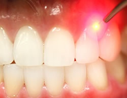 Laser Dentistry can be used during a number of soft and hard tissue procedures, in the areas of General Dentistry, Cosmetic Dentistry and Restorative Dentistry. The removal of decay, the preparation of cavities and root canal treatment can be completed painlessly and in minutes.