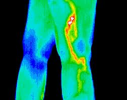 Thermal Image of deep vein thrombosis #Medical #DITI #Thermography