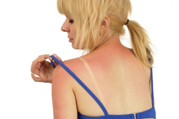 Best Natural Remedies For Sunburn   Lifetime Moms
