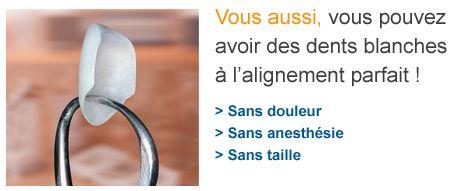 Facette dentaires Lumineers Centre dentaire Paris 20ème (75020)