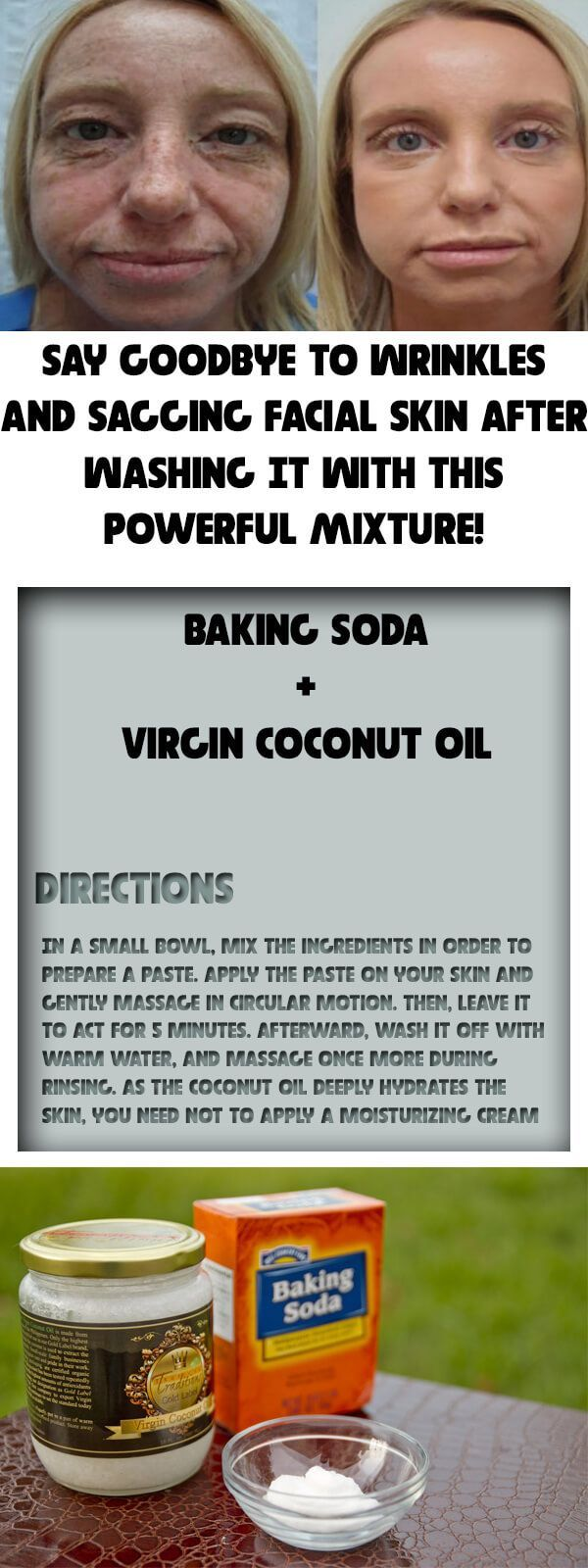 After washing your face with this remedy, you will have no acne, reduced wrinkles, and no more sagging skin! Baking soda and coconut oil both have tons of benefits, but they can transform your skin! If you are a sufferer of acne, then this one is certainly for you. This remedy also is effective in Continue Reading