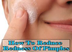 How to Reduce Pimple Redness? Remedies to reduce pimple redness is a common search when one experience a zit or a pimple. Like a pimple, redness of a pimple is painful and embarrassing too. It highlights a pimple more and can make you look unattractive. Well, if you too are looking for remedies to reduce pimple redness then ... #Acne, #NaturalRemediesToReduceRednessAroundPimple, #Pimple, #PimpleRedness, #RednessAroundPimple, #ReducePimpleRednessAtHome, #ReduceRednessAro