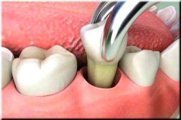 Extraccion Dental Guatemala