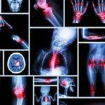 Wirbelsäulenprobleme sind oft der Grund für Schmerzen in anderen Körperteilen. Dann fängt man an, diese ohne Erfolg zu behandeln.Deshalb ist es sehr wichtig, dass man auf seine Wirbelsäule achtet. Bei Rückenschmerzen kann man genau sagen, welcher Teil der Wirbelsäule betroffen ist, indem man die Probleme benennt, die mit dem verbundenen Organ zusammen hängen. Diese bildliche