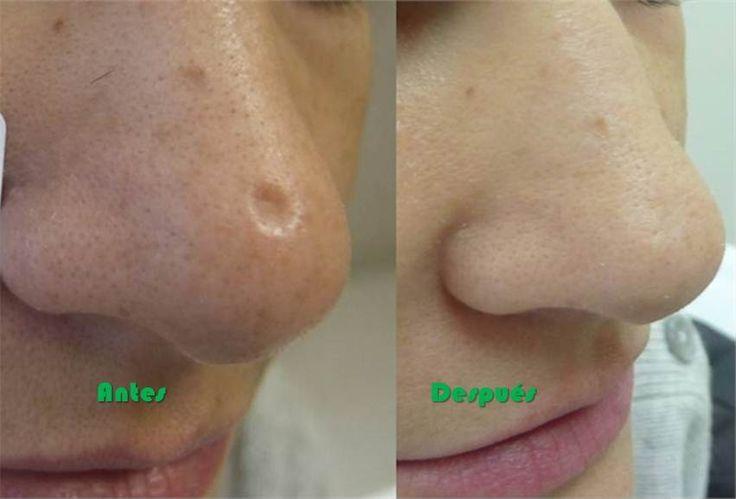 Cómo deshacerse de cualquier cicatriz en la piel usando estas recetas naturales - ConsejosdeSalud.info