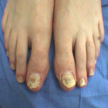 Simple Home Remedies For Nail Fungus - Natural Treatments & Cure For Nail Fungus | Find Home Remedy