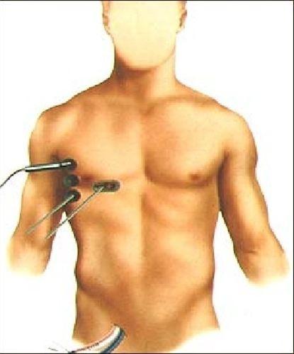 La cirugía cardiaca mininvasiva permite reducir el tiempo de recuperación de los pacientes